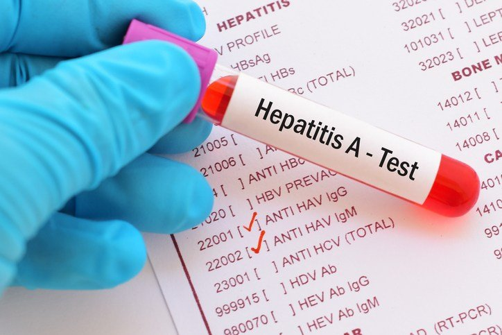 Hepatitis A outbreak declared in Ohio
