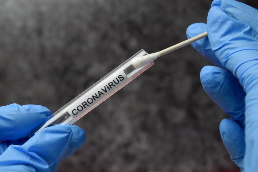 Cvs Offering Rapid Covid 19 Tests At Seven Valley Locations Wfmj Com
